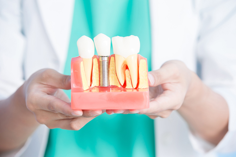 tooth implant model at a dental office