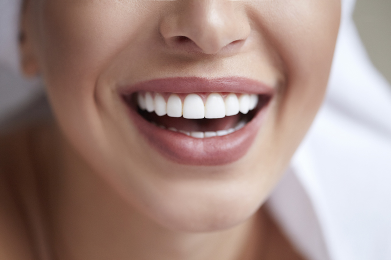 Healthy white smile close up. Woman with perfect smile thanks to cosmetic treatments like veneers