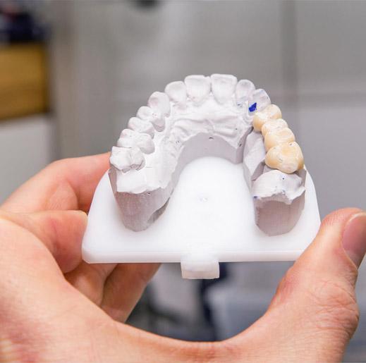 Dental Bridges from a Dentist Office
