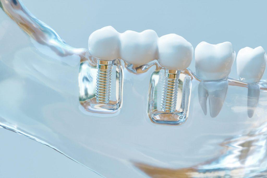 clear dental implant model