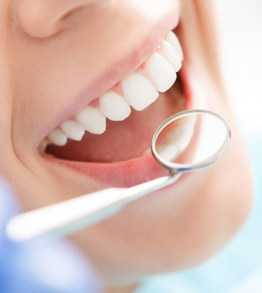 regular dental cleaning for white and healthy teeth